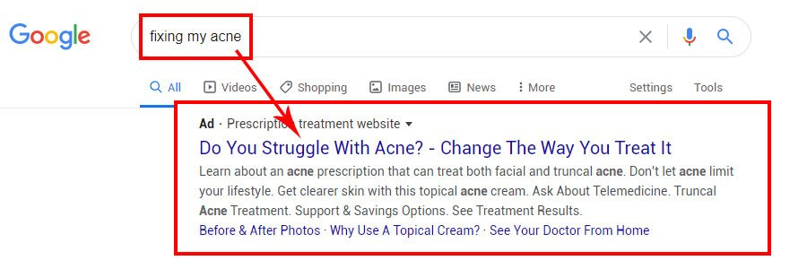 acne ppc search query ad copy